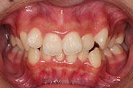 14歳 女性 前歯のでこぼこ
