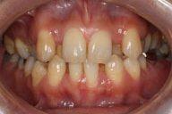30代 女性 前歯のでこぼこ