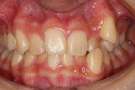 14歳 女性 歯のでこぼこ(非抜歯)